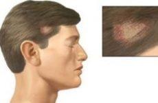 Асбестовидный лишай: причини, симптоми і лікування