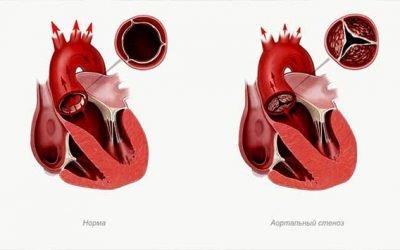 Хвороби серця у дітей та підлітків: симптоми і назви хвороб