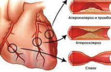 Народне лікування атеросклерозу нижніх кінцівок