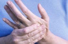 Що робити, якщо болять пальці рук? Сильно німіють суглоби фаланг