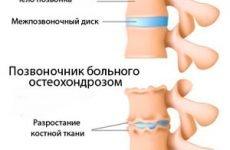 Вся правда: чи можна вилікувати остеохондроз назавжди? Реальні відгуки та унікальні методики