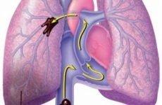 Тромб в легенях: причини і наслідки гострого стану