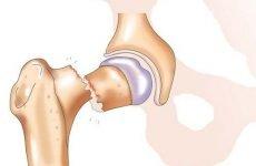 Профілактика перелому шийки стегна: як запобігти травму і її наслідки