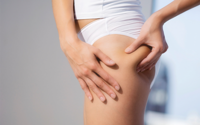 Користь антицелюлітного масажу, протипоказання, ефективність