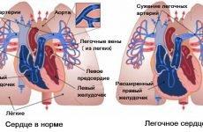Легеневе серце: причини, симптоми і тактика лікування правошлуночкової недостатності