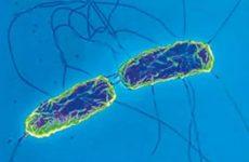 Черевний тиф: симптоми, лікування інфекційної хвороби, причини і ознаки