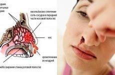 Слабкі судини в носі: як зміцнити стінки судин