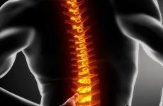 Реабілітація після перелому поперекового відділу хребта: методи і правила проведення