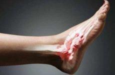 Як грамотно робити масаж після перелому гомілкостопа на різних етапах відновлення