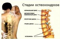 8 кращих видів медикаментозного лікування шийного остеохондрозу