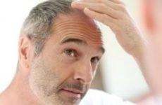 Волосяний лишай: причини, симптоми і лікування