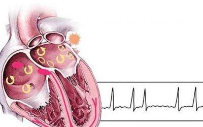 Надшлуночкові (суправентрикулярная) аритмія: що це таке і рекомендації з лікування