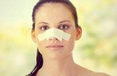 Репозиція кісток носа після травми: що це таке і як лікувати, реабілітація