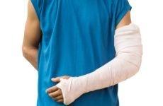 Як відбувається відкритий перелом руки, симптоми травми і її лікування