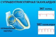 Вузлова або реципрокная тахікардія