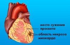 Дрібновогнищевий інфаркт міокарда на ЕКГ