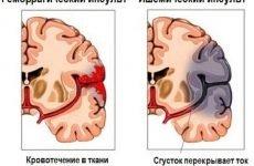 Реабілітація та відновлення після інсульту: терміни відновлення в домашніх умовах