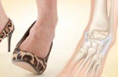 Перелом п'ятої плеснової кістки: класифікація, симптоми, стандарт лікування