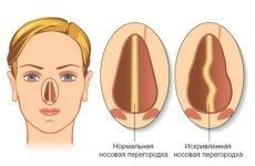 Перелом носової перегородки: перша допомога, діагностика, лікування