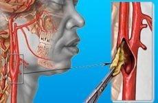 Симптоми і лікування стенозу сонної артерії