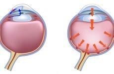 Тонометр для вимірювання внутрішньоочного тиску: види і способи вимірювання