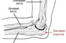 Перелом ліктьового відростка зі зміщенням і без: лікування та реабілітація після травми
