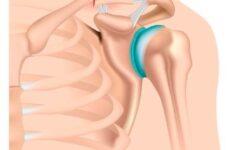 Коли потрібна операція при переломі ключиці зі зміщенням