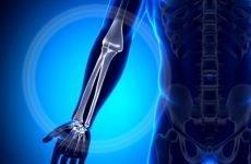Симптоми перелому променевої кістки — особливості, класифікація і характеристики, діагностика і лікування, ускладнення та реабілітація