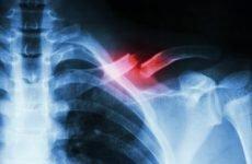 Якими методами здійснюється лікування перелому ключиці