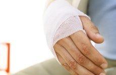 Чому відбувається перелом п'ятої п'ясткової кістки, методики лікування та можливі ускладнення