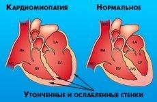 Що таке алкогольна кардіоміопатія?