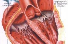 Інфаркт передньої стінки серця: наслідки та лікування