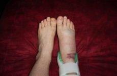 Скільки заживає перелом щиколотки, методи прискорення процесу