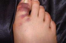 Вивих пальця на нозі: симптоми і лікування, що робити при травмі, ускладнення