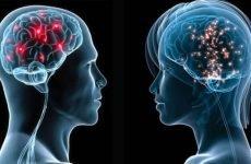 Ішемічний інсульт лівого боку: скільки живуть, наслідки, реабілітація, прогноз для життя