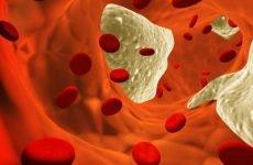 Ангіопатія судин головного мозку: симптоми, діагностика і лікування