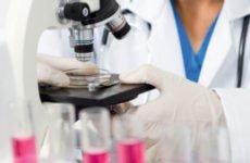 Аналіз мокротиння: норма, як її зібрати на туберкульоз і для чого здають?