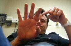 Скільки зростається перелом пальця на руці: характерні особливості, види, лікування та реабілітаційний період