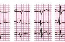Особливості атипових форм інфаркту міокарда