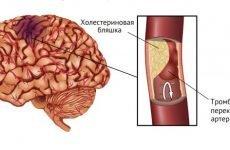 Розвиток атеротромботического інсульту: причини, симптоматика та лікування