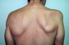 Вивих лопатки: симптоми і ступеня тяжкості, перша допомога та вправляння кістки, лікування