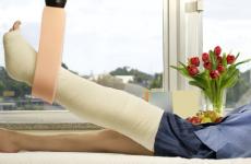 Коли починати і як розробляти ногу після перелому гомілкової кістки