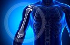 Відкритий перелом плечової кістки: анатомічні характеристики травми, виражена симптоматика, особливості діагностики та ефективних методів лікування