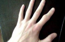 Скільки заживає перелом пальця: механізм травми та її класифікація, симптоматика, діагностика, тривалість лікування і ризики ускладнень