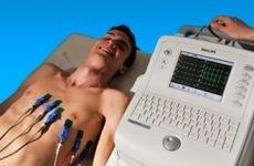 Пароксизмальна тахікардія – симптоми і лікування, на ЕКГ діагностика