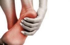 Біль у п'яті збоку з внутрішньої сторони при ходьбі: причини і лікування