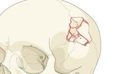 Перша допомога при переломі черепа та методи лікування травми