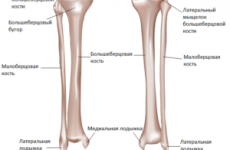 Велика гомілкова кістка: перелом виростків і межмыщелкового піднесення великогомілкової кістки, терміни лікування