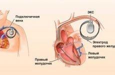 Кардіостимулятор серця: що це таке, відгуки пацієнтів і яка вартість операції