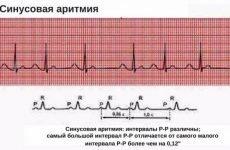 Синусова аритмія у дитини: симптоми і лікування